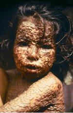 Bangleshi child with smallpox (Source: wikipedia.)