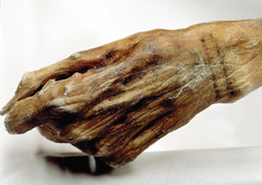 Otzi's hand perfectly preserved
