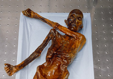 Otzi - an example of a natural and wet mummy