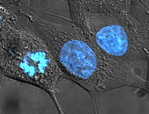 Three oblong-shaped HeLa cells have been stained with the dye Hoechst 33258, which colours nuclear DNA bright blue. You can see how the nucleus holds the DNA.
