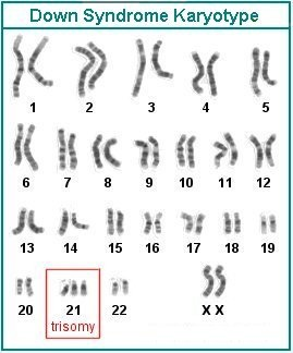 Karyotype of person with Down Syndrome - note the extra chromosome 21 (See Footnote 1 for more).