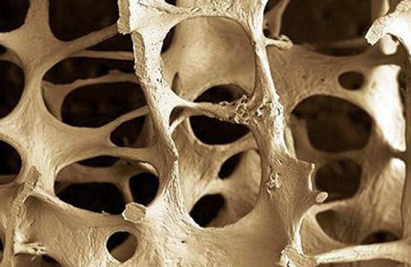 Featured image: Osteoporosis supplements: A bone of contention