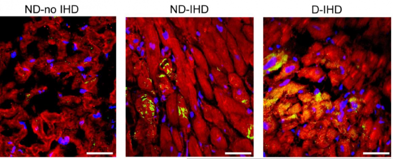 Confocal images showing the expression pattern of autophagy mediator Beclin-1 (stained yellow) in human heart tissue samples collected from diabetic (D) and non-diabetic (ND) patients with or without ischemic heart disease (IHD/ no IHD).  Cardiomyocytes were stained with myosin heavy chain (red).  Credit: http://dx.doi.org/10.1016/j.ijcard.2015.08.111