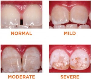 Different grades of dental fluorosis