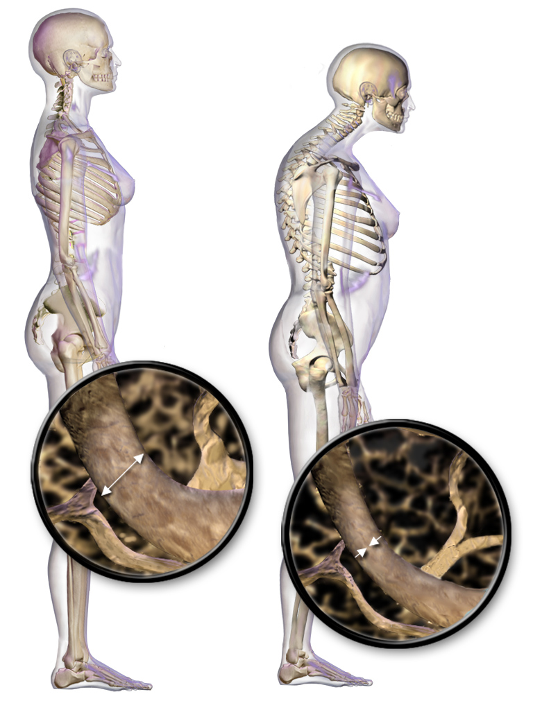 llustration depicting the difference in standing posture with osteoporosis. There can be a gradual collapse of the vertebrae resulting in an excessive curvature of the thoracic region. Credit: https://en.wikipedia.org/wiki/Osteoporosis