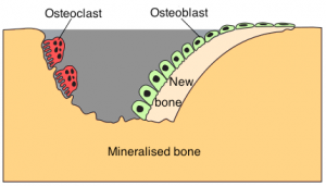 Bone remodeling showing the role of osteoclasts and osteoblasts. Credit: Armin Kübelbeck