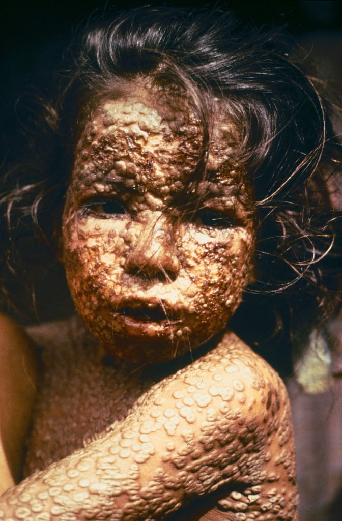 800px-Child_with_Smallpox_Bangladesh-9508158000401ed9cd2d494f40942da2c5690c04