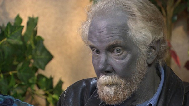 Featured image: Colloidal Silver Blues