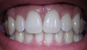 Featured image: Dental health not just fluoride