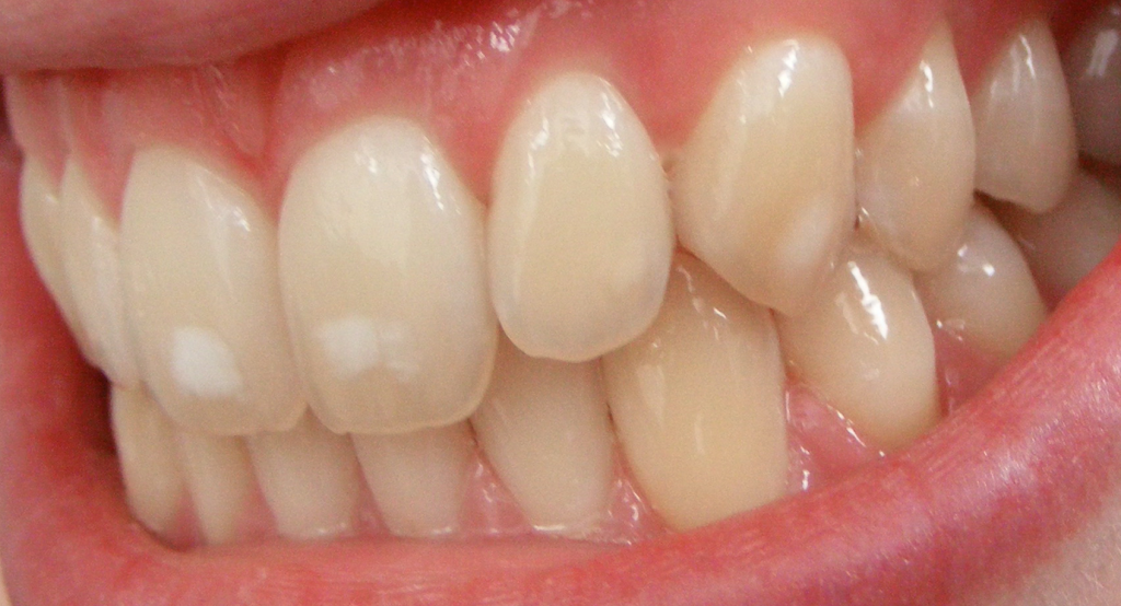 High levels of fluoride can lead to dental fluorosis. Credit: Matthew Ferguson 57 / Wikimedia.