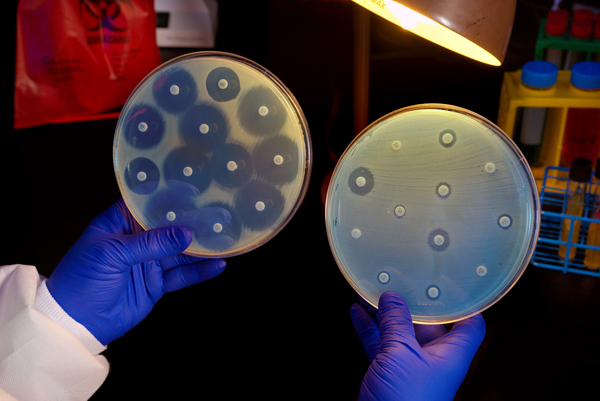 Image: Superbug death may herald 'start of the post-antibiotic era'