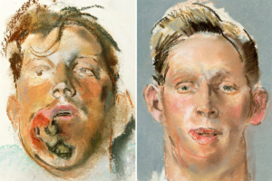 Featured image: Changing the face of plastic surgery