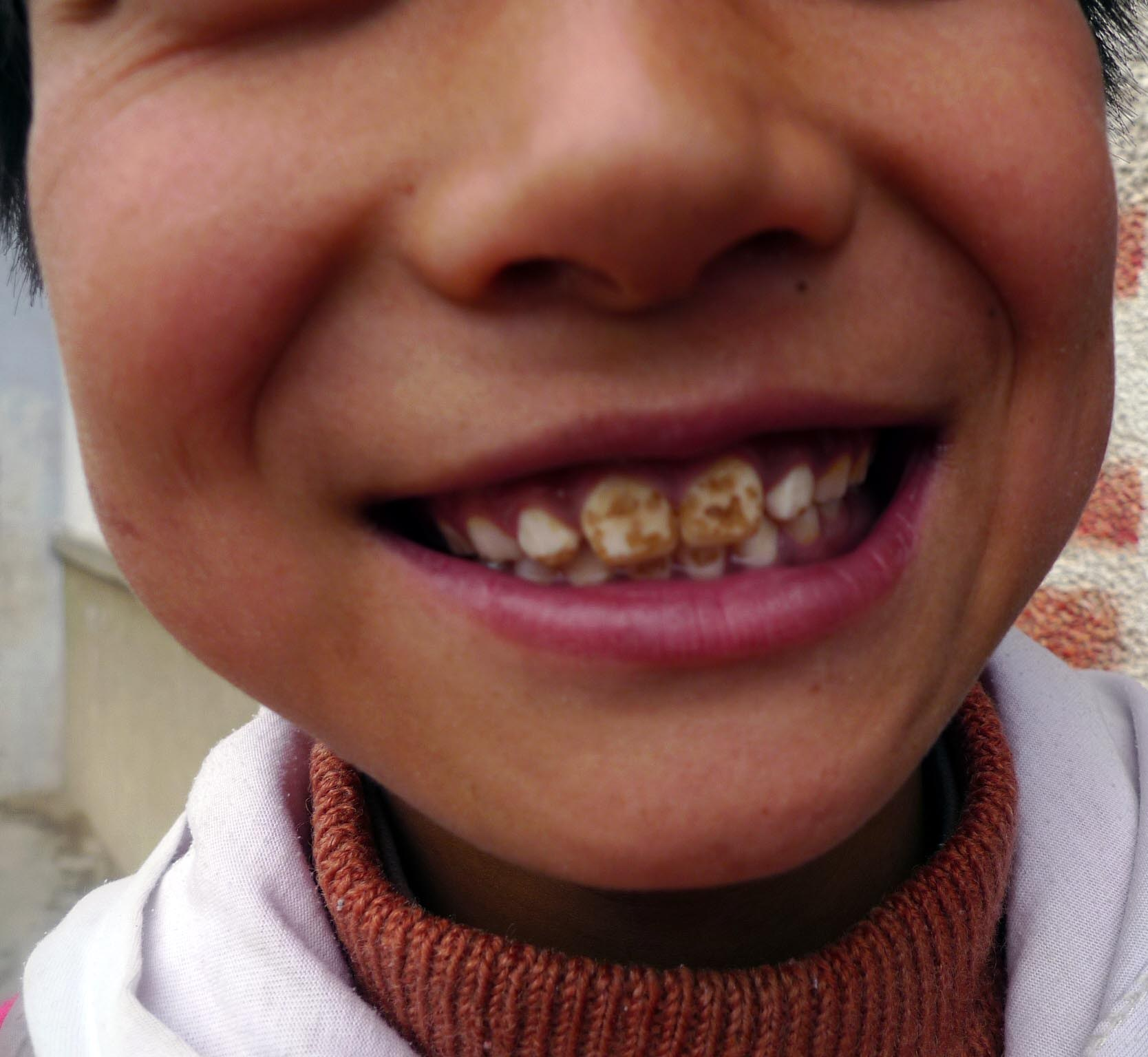 Image: Facts about fluorosis – not a worry in New Zealand