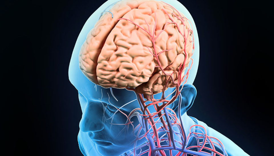 Image: Large-scale genetic study provides new insight into the causes of stroke