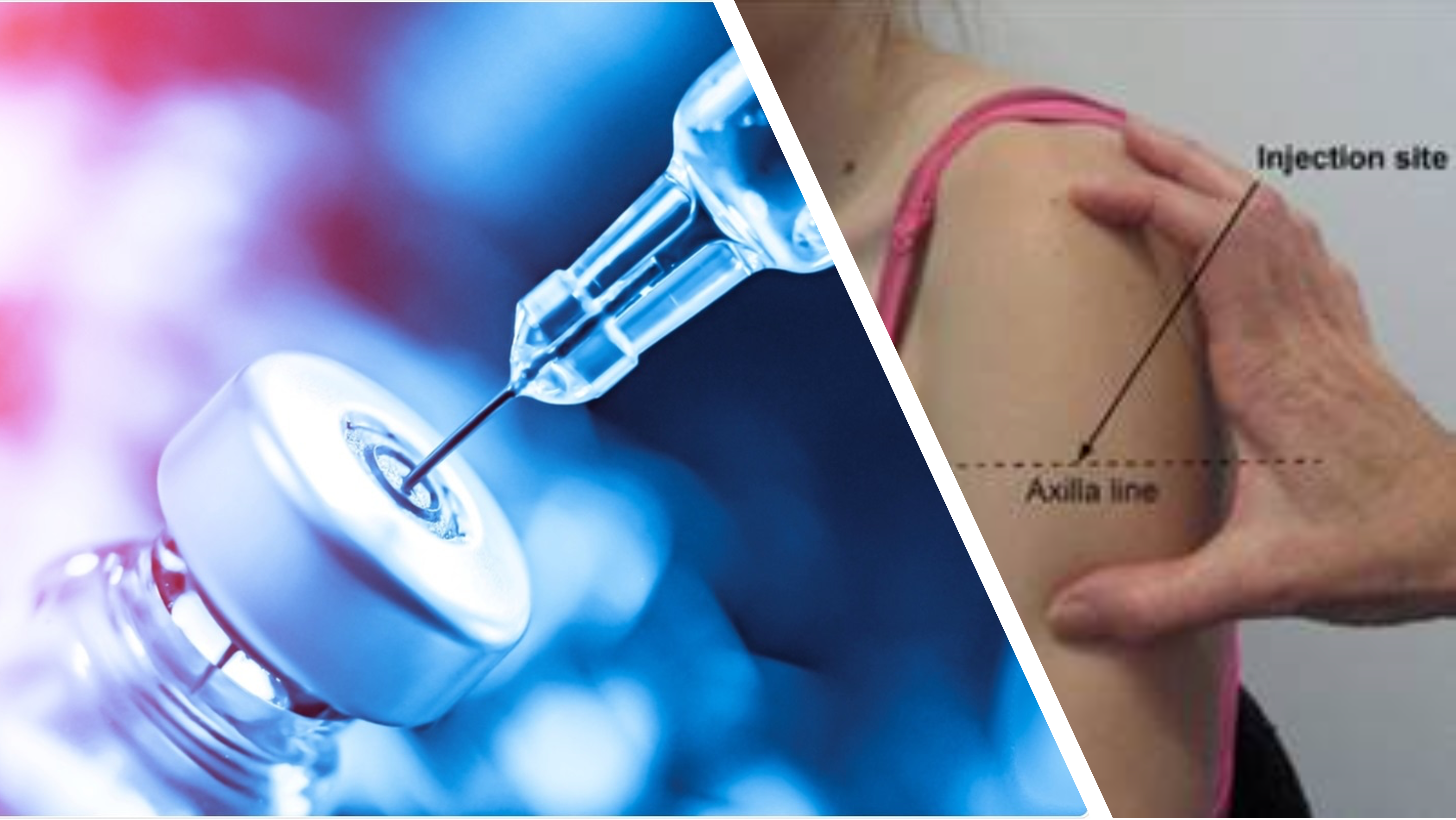 Featured image: Is injection technique contributing to the risk of post vaccine myocarditis?